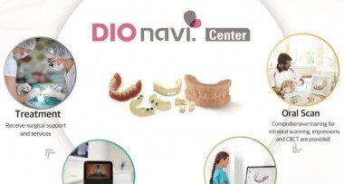 Proces implantacji DIO NAVI